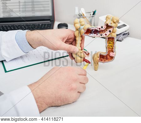 Doctor Pointing Pen To Inflamed Appendicitis Using A Intestines Anatomical Model. Consultation Gastr