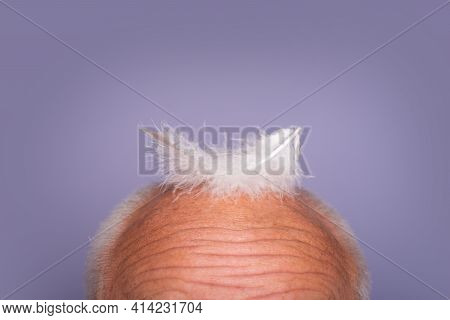 Bald Old Man Head. Senior Baldness Male. Hair Loss, Health Problems, Aging, Hairtreatment And Hairlo