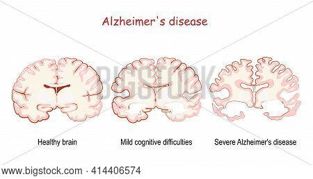 Alzheimer's, Is A Neurodegenerative Disease. Dementia. Comparison And Difference Between Healthy Bra