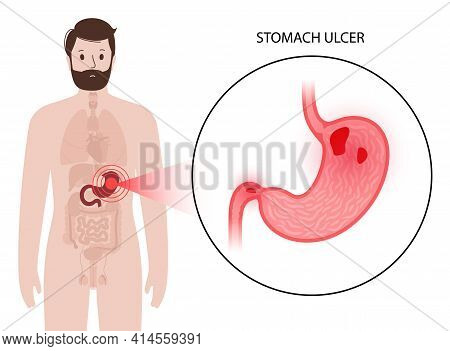 Ulcer, Pain And Inflammation In The Stomach. Disease In The Digestive System Concept. Internal Organ