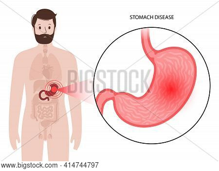 Pain Or Inflammation In The Stomach. Man Has Pain, Disease Or Cancer In The Digestive System. Human