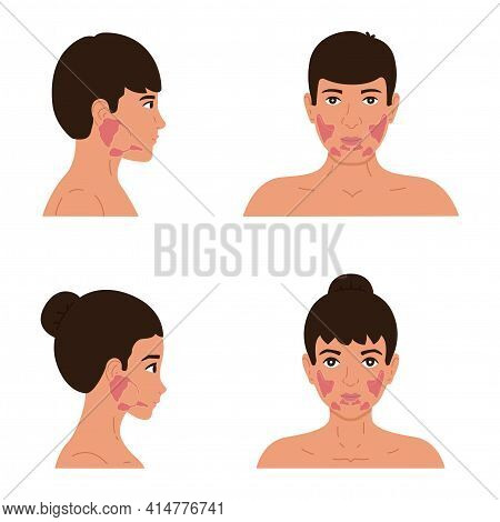 The Location Of The Parotid, Submandibular And Sublingual Salivary Glands In The Male And Female Bod