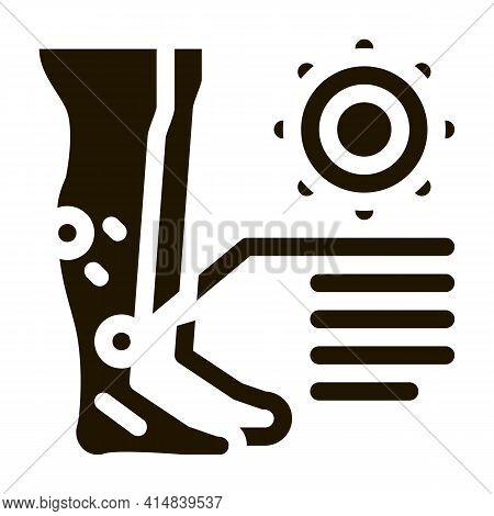 Rash Dermatitis On Legs Glyph Icon Vector. Rash Dermatitis On Legs Sign. Isolated Symbol Illustratio