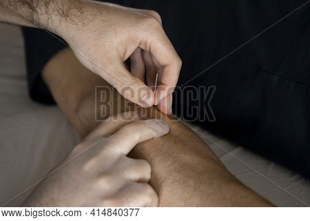 Close Up Of Physiotherapist Hands With Surgical Gloves Introducing A Needle Or Pulling It Out From A