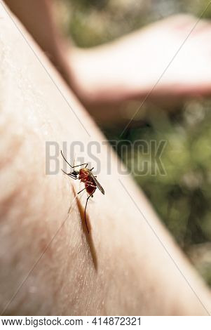 Mosquito Sits On A Human Body And Drinks Blood, Culicidae, Gnat, Malaria Infection, Diptera Insects