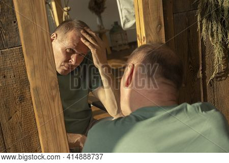 Mature Adult Man Looking At Mirror Reflection And Is Sad With Alopecia And Hair Loss