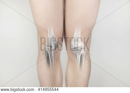 Conceptual Photo. X-ray Of A Man Knees. On The Skin Of The Patient Knees, It Was As If An Image Of T