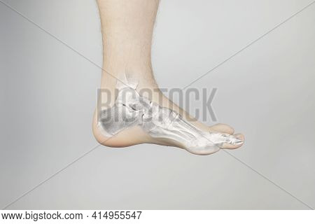 Conceptual Photo. X-ray Of A Man Foot. On The Skin Of The Patient Foot, It Was As If An Image Of The