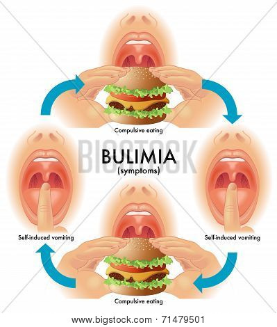 how does bulimia effect a persons How does bulimia affect your body with bulimia to develop and the particular side effects that bulimia can inflict will totally vary from person to person.