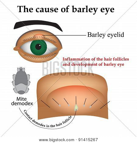 Diseases of the eye barley. Causes of barley. Demodex mite infestations. Inflammation volosyannoy bu