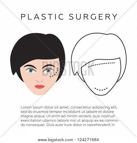Plastic surgery infographics vector illustration. 10 eps vector illustration
