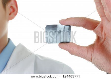 X-ray periodontitis tooth. Dentist holding a picture of a sick tooth