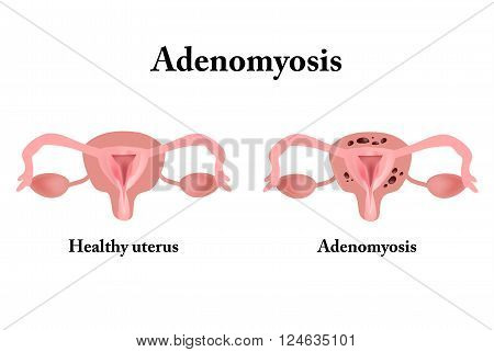 Endometriosis. The structure of the pelvic organs. Adenomyosis. The endometrium. Vector illustration on isolated background.