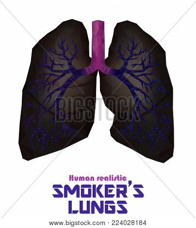 Low Poly Realistic Human Lungs And Bronchus With Cancer Inflammation Disease. Vector.