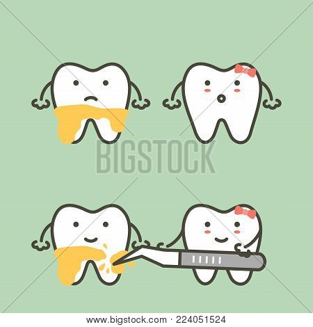step of teeth scaling - dental plaque removal, before and after - tooth cartoon vector flat style cute character for design