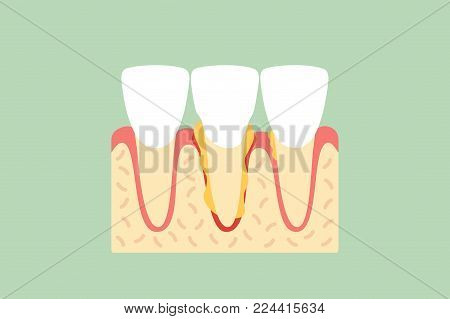 periodontal disease or gingivitis of incisor tooth - dental cartoon vector flat style cute character for design poster