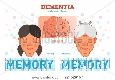 Dementia or alzheimer's disease concept vector illustration diagram with young and old woman. Medical information.