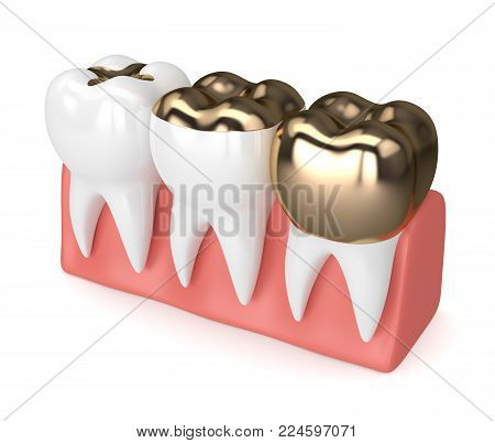 3D Render Of Teeth With Different Types Of Dental Gold Filling