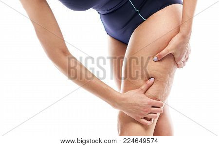 Cellulite on female legs. Female silhouette on white background.