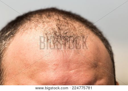 Bald spots on the head of a man .