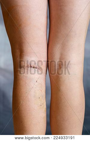 Womans legs after varicose vein surgery, with visible surgical sutures (stitches) and wounds on one leg. Curative treatment, aesthetic procedures, thrombosis prevention and senior health care concept.