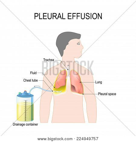 Pleural effusion. Diagram showing human silhouette with highlighted lungs, fluid buildup in the pleura, Chest Tube, and Drainage container. Treatment of tension hydrothorax (or hemothorax) insertion of chest tubes for invasive procedure to remove fluid poster