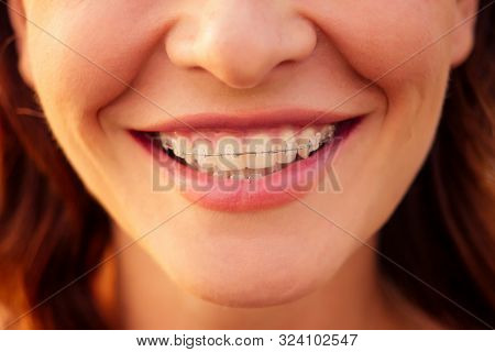 Woman, 30-35 Years Old Smiling Toothy Smile With Braces On Sea Ocean Beach Background