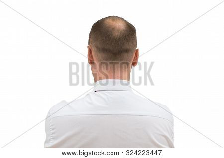 Human Alopecia Or Hair Loss - Adult Men Bald Head. Back Of Balding Man From Shoulders Isolated On Wh