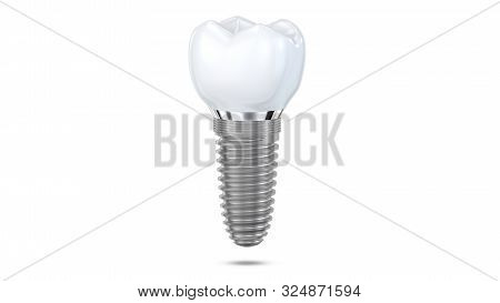 Dental Implant Model Of Molar Tooth Levitate At The Air As A Concept Of Implantation Teeth And Denta