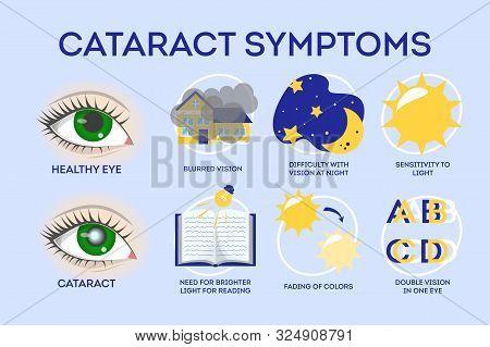 Cataract Disease Symptoms Inographic. Eye Illness, Blindness