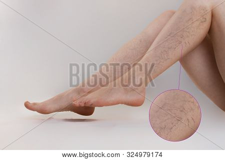 Medicine And Health. The Concept Of Female Varicose Veins. Female Legs With Varicose Veins, On A Whi