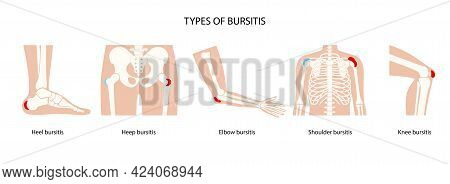 Common Types Of Bursitis. Inflamed Bursa In Human Body. Elbow, Shoulder, Knee Pain. Ankle Hip And Fo