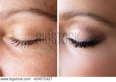 Woman Face Skin Make Up. Comparing Before And After