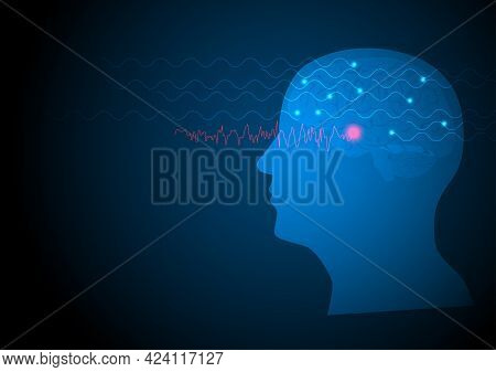 Focal Seizure. Vector Illustration Of Human Brain And Electroencephalograhy Or Eeg Originating From