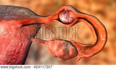 Tubal Ectopic Pregnancy, 3d Illustration Showing An 8-week Human Fetus Implanted In The Fallopian Tu