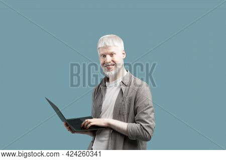 Modern Technologies. Happy Albino Guy Using Laptop Computer Over Turquoise Background, Enjoying Remo