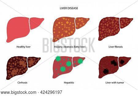 Liver Disease Logo. Healthy Organ, Fibrosis, Cirrhosis Or Fatty Liver Concept. Pain, Tumor Or Hepati
