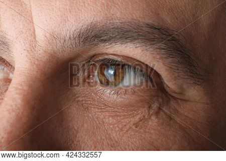 Closeup View Of Mature Man Suffering From Cataract