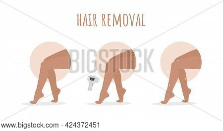 Hair Removal. Laser Epilation. Perfect Smooth Female Legs. Before And After. Step By Step Procedure