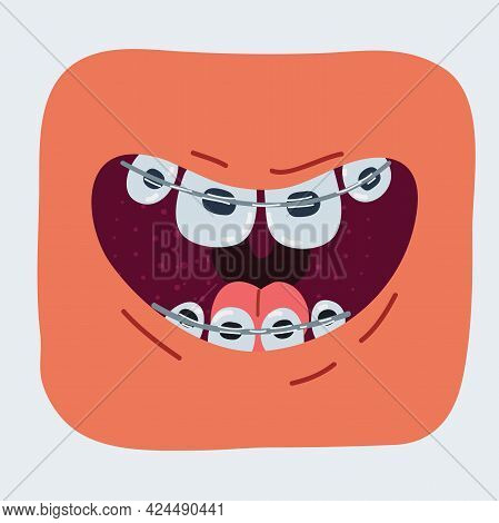 Vector Illustration Of Braces Corrective Orthodontics, Smiling Comic Mouth With Teeth And Braces