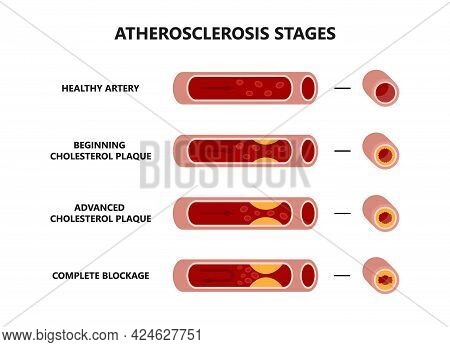 Atherosclerosis Formation. Healthy And Unhealthy Arteries. Cholesterol Plaque In The Blood Vessels.