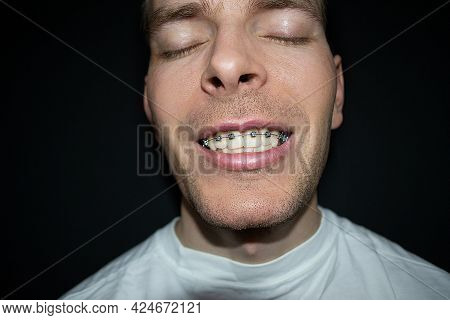 Portrait Of A Smiling Scandinavian Man With Closed Eyes With Braces On His Teeth. Upper Jaw Braces