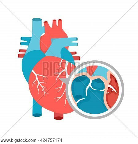 Human Heart Anatomy Close-up. Educational Diagram With Heart Illustration.