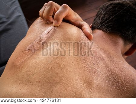 The dry and itching man's skin after sunbath