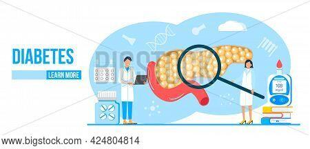 Diabetes Mellitus, Type 2 Diabetes And Insulin Production Concept Vector.