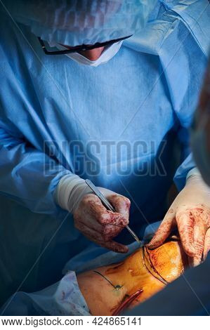 Doctor Cutting Patient Abdomen With Scalpel While Performing Tummy Tuck Surgery In Operating Room. M