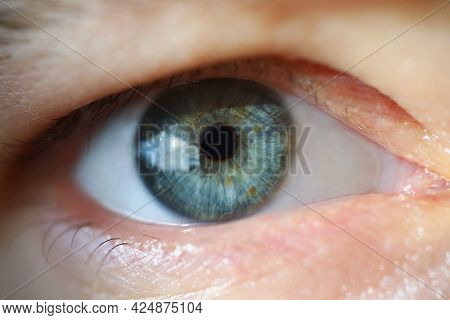 Male Pupil Is Blue With Overhanging Eyelid
