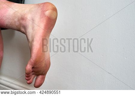 A Large Blister On The Heel And Side Of A Foot. A Large Blister Has Formed On The Heel Of A Foot Due