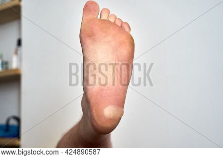 A Large Blister On The Heel Of A Foot. A Large Blister Has Formed On The Heel Of A Foot Due To Rubbi