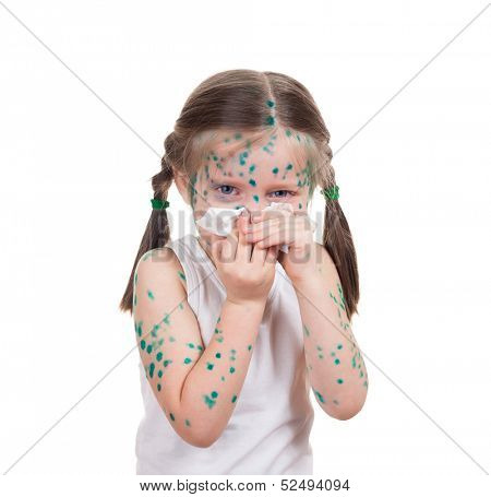 acne on child. chickenpox